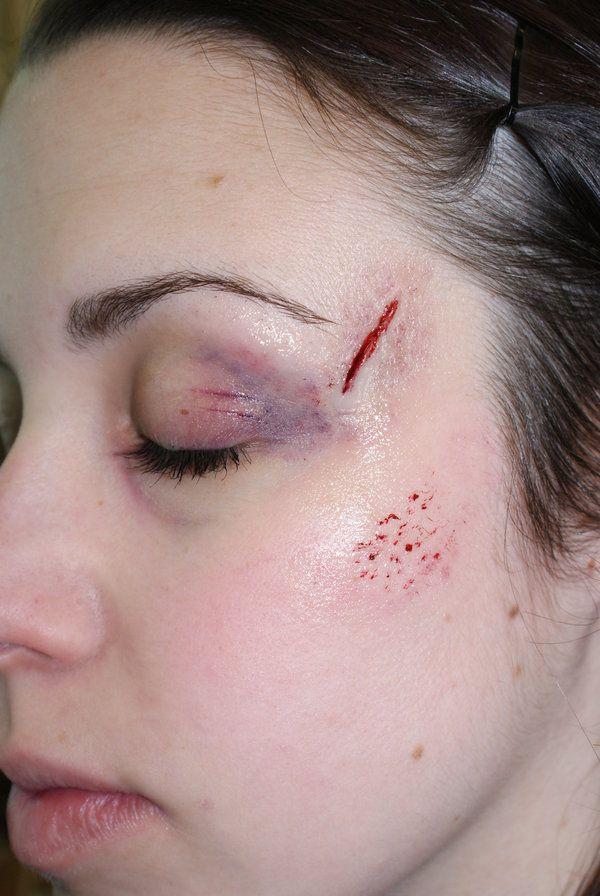 Traiter les cicatrices naturellement