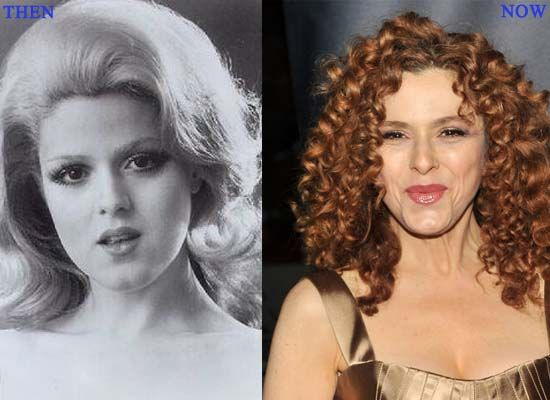 Bernadette Peters Plastic Surgery Photo Before and After – www.celeb-surgery…