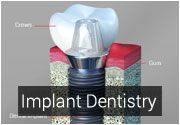 Our Implant dentist Dr.Negari offers Implant Dentistry services at Los Gatos CA, using latest dentistry technologies at Esthetic and Family Dentistry. http://www.dentalofficelosgatos.com/implant-dentist.html