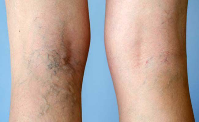 Pin on Skin Remedies Discoloration