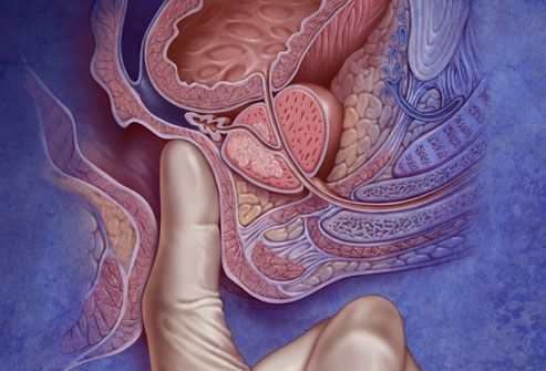 Prostate Cancer - causes, symptoms, complications, treatment