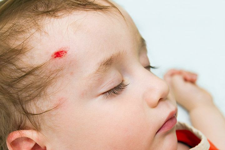 Concussion In Baby