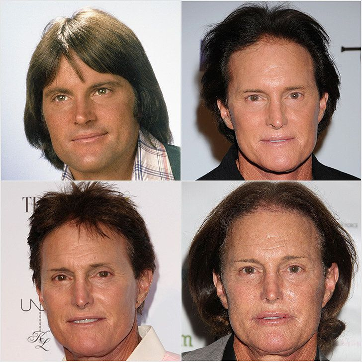 Bruce Jenner's Transformation (Kardashians) http://dunway.us