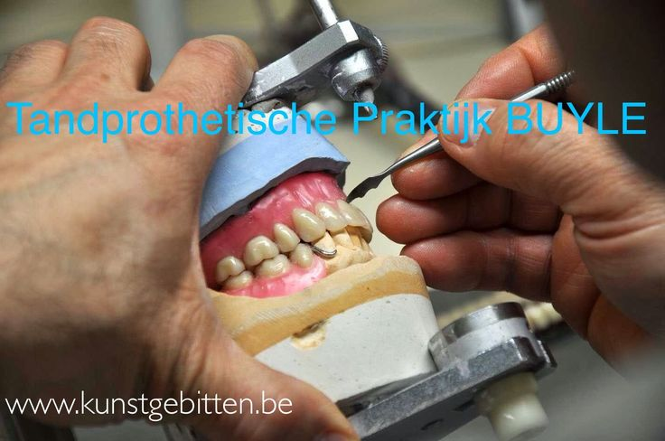 68 Best Tandprotheses En Witte Tanden Images On Pinterest