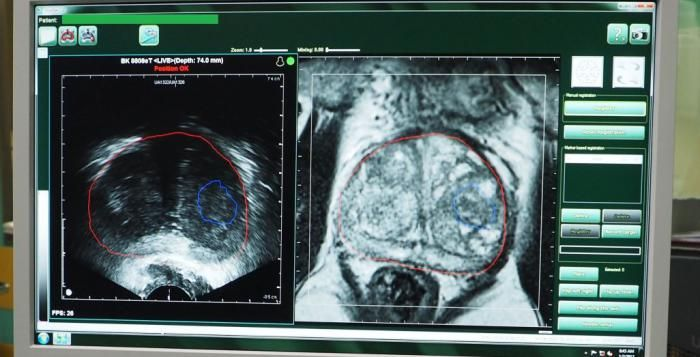 Nová technologie, kterou používají plzeňští urologové, zachytí přesněji nádor
