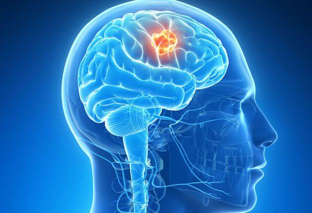 Síntomas de un tumor cerebral