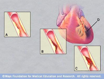 Blocked artery and injured tissue in a heart attack.
