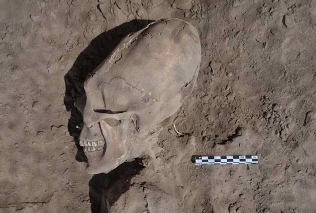 """Archeologists have unearthed what looks like a cone-shaped alien skull from 1,000 years ago in Mexico. The skull, which dates from 945 A.D. to 1308 A.D., was discovered accidentally while digging an irrigation system in the northwest state of Sonora in Mexico. Cristina Garcia Moreno, who worked on the project with Arizona State University, explained that 13 of the 25 skulls found in the Hispanic cemetery had these deformed heads. """"We don't know why this population deformed their heads"""""""