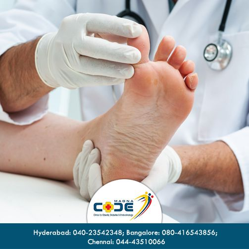 Worried that your #diabetic condition will cause some harm to your foot? CODE #foot care unit has state of the art facilities to test your feet for any damage. They also manufacture special #footwear for patients with foot problems. #CODEfoot  To know more, click here http://www.magnacode.co.in/#!foot-care/sitnp For more mail us: magnacodechennai@gmail.com, magnacode.blr@gmail.com, dr.magnacode@gmail.com