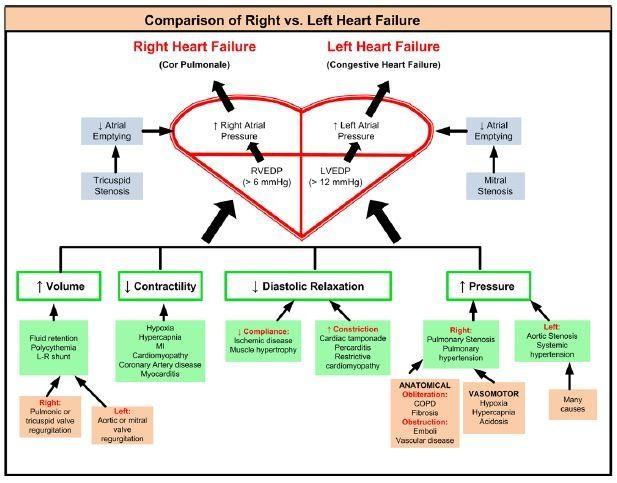 Best 25+ Pathophysiology of heart failure ideas on Pinterest