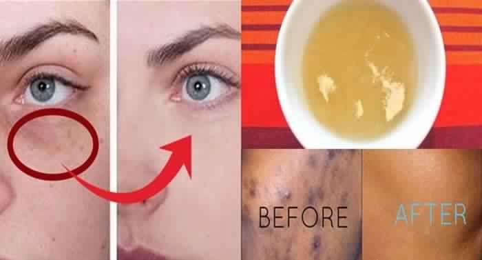 Ayant des taches sombres sur la peau, médicalement appelé hyperpigmentation, est un problème commun qui est le résultat de l'augmentation de la production de mélanine dans le corps. Il affecte les deux sexes et les personnes de tous âges tandis que les personnes avec la peau plus foncée sont plus sujettes à ce problème.