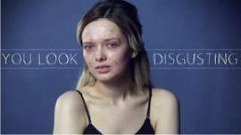 This video highlights the shocking & judgemental comments that beauty blogger Em Ford received online after posting images of her face with and without make-up.  Make up or no makeup we think Em Ford is beautiful and inspirational!  #YouLookDisgusting #MyPaleSkin #YouAreBeautiful