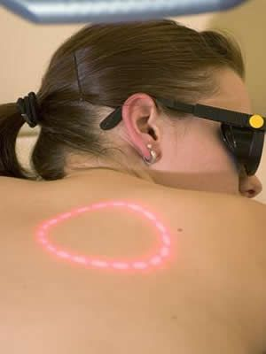 The most effective and long term method of hair removal from the back is by laser treatment. Let us take a look at some of the pros and cons of back hair laser removal.