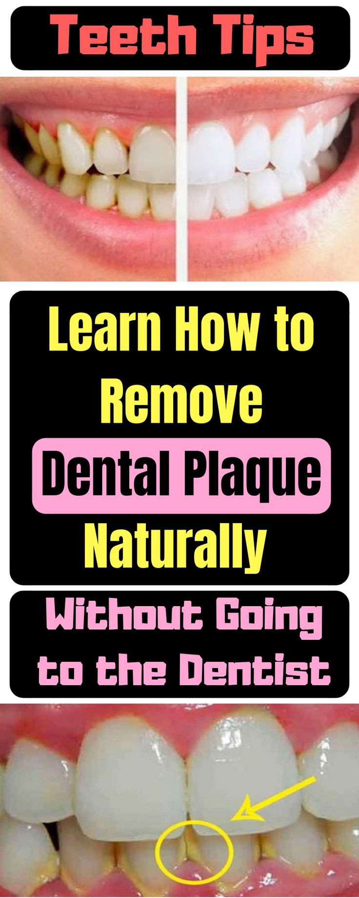 Learn How to Remove Dental Plaque Naturally without Going