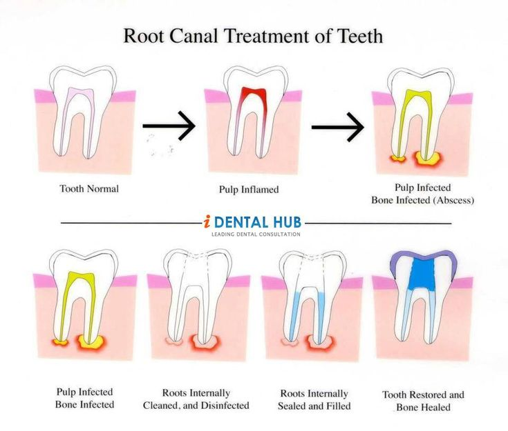 1000+ Images About Endodontics On Pinterest
