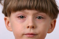 Pink eye is the common and extremely contiguous eye problems that causes from ba