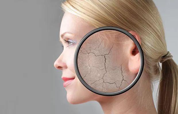 Hyalüronik asit zamanla ciltte azaldıkça kuruluğa sebep olur.