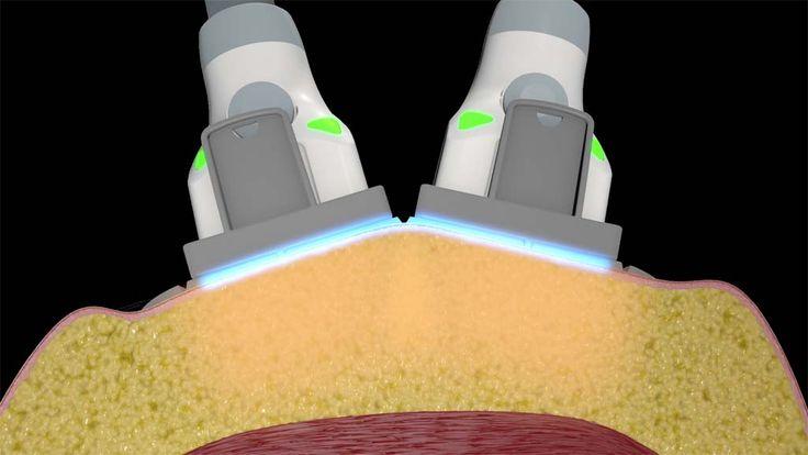 Redukcja tkanki tłuszczowej i modelowanie sylwetki laserem Sculpsure