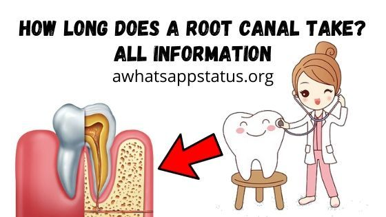 How long does a root canal take? All information | Root ...