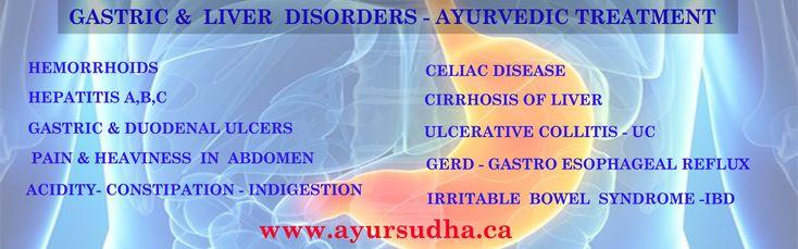Gastric problems, Acidity, Constipation, GRED, IBD, Collitis ayurvedic treatment in Brampton, Canada.