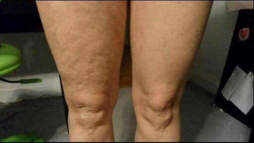 Galvanic Body Spa home treatments. tone. firm. zero cellulite.
