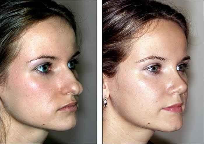 Fettabsaugung des Gesichts vor und nach dem Abnehmen