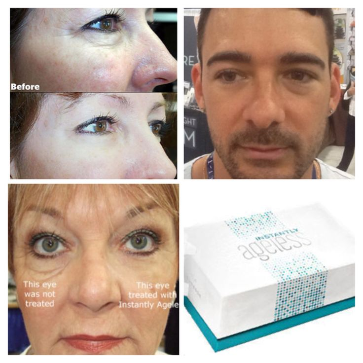 """Remove eye bags and wrinkles INSTANTLY with the """"instantly ageless""""!! Get yours today from http://beautyinskin.jeunesseglobal.com/"""