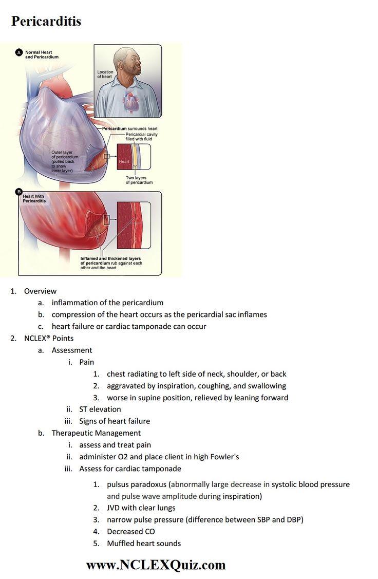 NCLEX Cardiac Points: Pericarditis - NCLEX Quiz | Cardiac ...