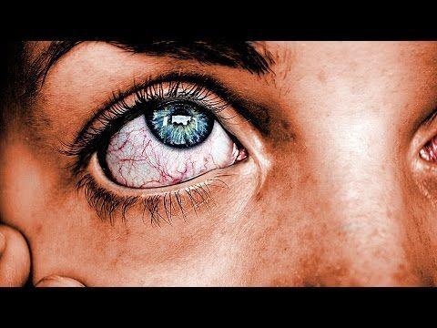Conjuntivitis. Síntomas, causas y tratamiento