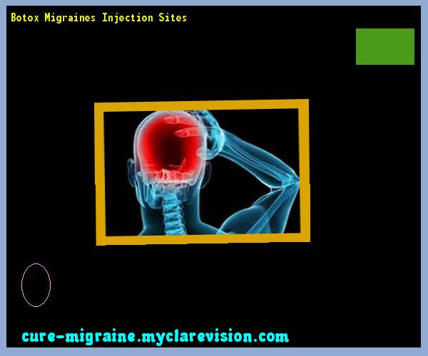 Botox Migraines Injection Sites 201348 - Cure Migraine