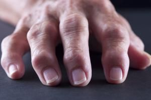 Don't Miss These 8 Early Signs of Arthritis: Lumps and Bumps Around Joints