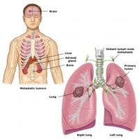 Small cell lung cancer (SCLC), formerly called oat cell carcinoma, is considered different from other lung cancers, which are called non–small cell lung cancers (NSCLCs) because of their clinical and biologic features.