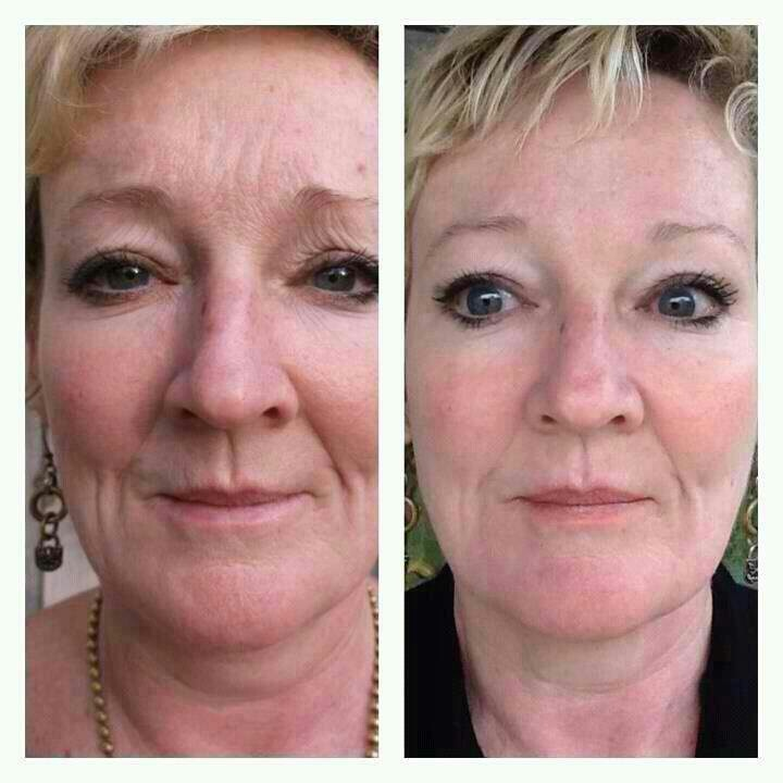 Face Lifts Botox All That Is So Expensive Amp Invasive