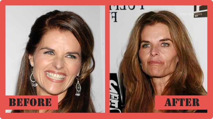 Maria Shriver Plastic Surgery Before And After Maria Shriver Plastic Surgery #MariaShriverPlasticSurgery #MariaShriver #celebritypost