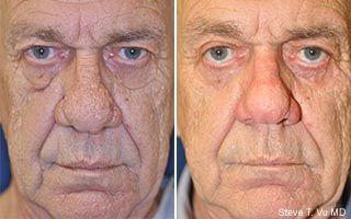 Blepharoplasty Before and After in Alabaster, Alabama. Eyelid surgery in Alabaster, AL.