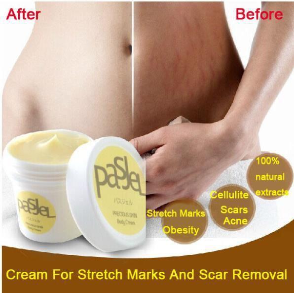 Poderosa para estrias óleos essenciais da pele creme de tratamento para estrias a obesidade pós-parto Repair creme alishoppbrasil