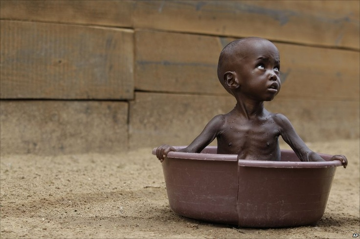 The famine in East Africa. I do not believe I have a right to complain about anything.