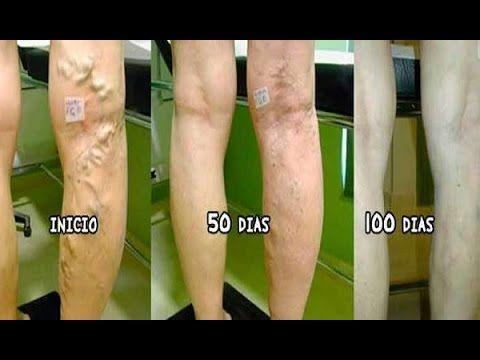 Este es el mejor remedio natural para las venas varicosas y dolor en las piernas! FACIL DE PREPARAR! - YouTube