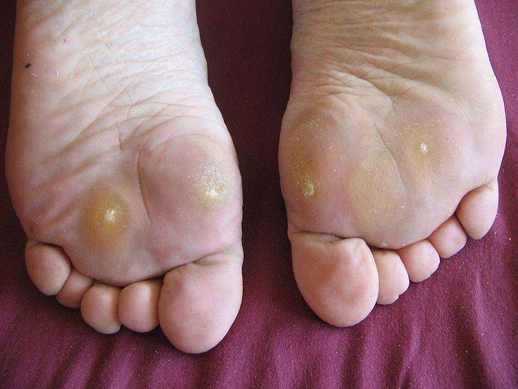 la gota pie tratamiento de gota wikipedia el acido urico produce fiebre