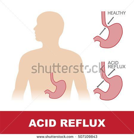 vector illustration of comparison of healthy stomach and with acid reflux