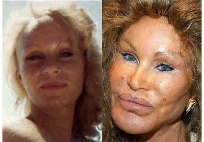 Jocelyn Wildenstein currently holds the crown for worst celebrity plastic surgery in show business