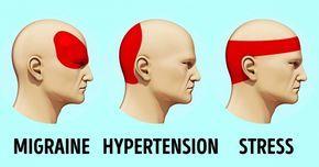 Lorsque vous souffrez d'un mal de tête et que le comprimé dont vous avez besoin ne se trouve pas à portée de main, la situation semble désespérée. Mais ce n'est pas le cas. Il y a un moyen scientifique de se débarrasser d'un mal de tête : l'acupression. - Publicité - Aujourd'hui, Bridoz va vous …