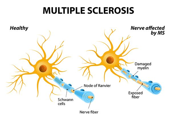 How much is important to notice the first signs and symptoms of Multiple Sclerosis. There is many symptoms that can be signs of starting starting progress of ms disease.