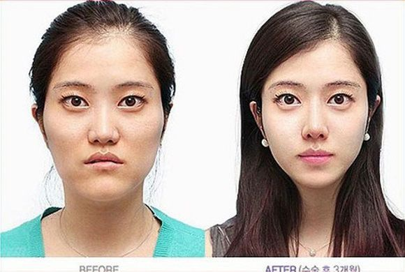 Nevertheless, it can be quite startling at times to see just how much a skilled surgeon can do. From the Japanese woman transforming herself into a living porcelain doll to the images of South Korean cosmetic surgery