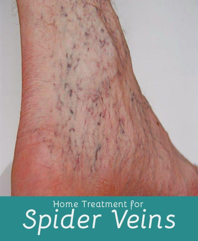 Home Treatment For Spider Veins | Medi Tricks