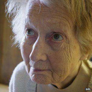 Alzheimer's insight for DNA study