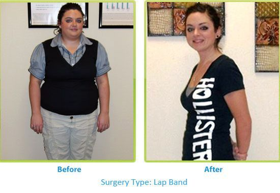 Amazing results from bariatric surgeries