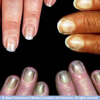 Fingernails — Photo of Beau's lines, Terry's nails and yellow nail syndrome
