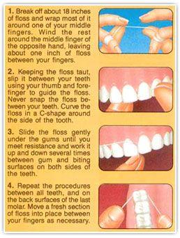 Proper Flossing Technique. Dental Care 4 Kids - pediatric dentist in Flower Mound, TX @ www.dentalcare4kidstexas.com