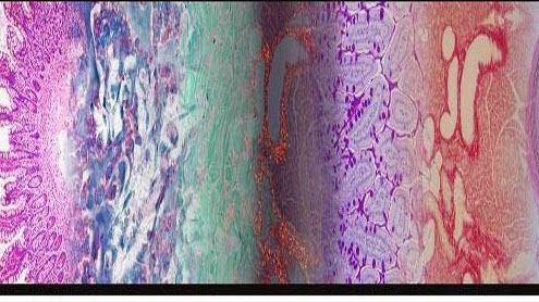 Journal of Histology & Histopathology is an Open Access (Gold OA), peer reviewed, international online publishing journal, which aims to publish premier papers on all the related areas of advanced research carried in its field. http://www.hoajonline.com/histology